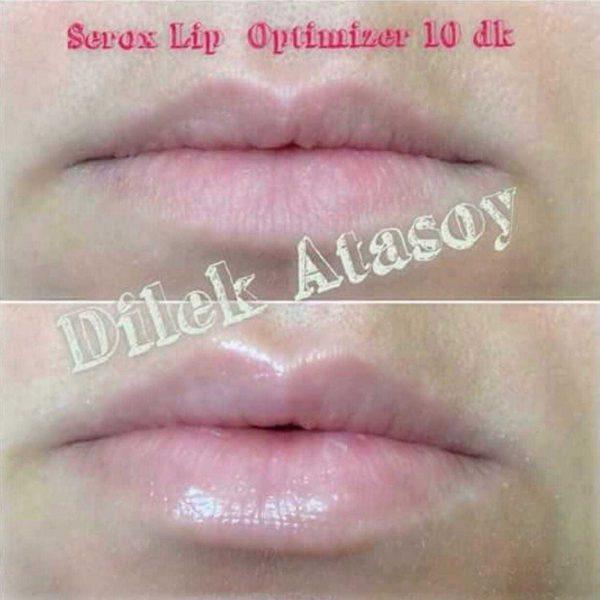 Бальзам для увеличения губ Zeitgard Serox от LR, Германия